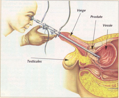 Examen de la prostate érotique